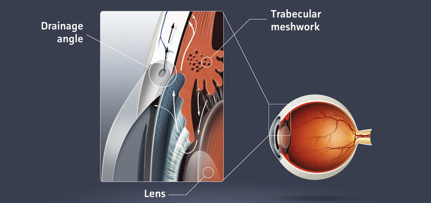 High quality raster illustration of glaucoma (eye disease)
