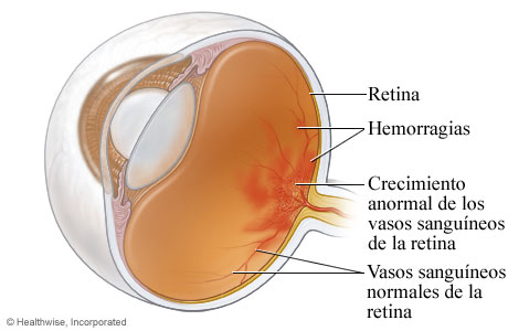 retinopatia1